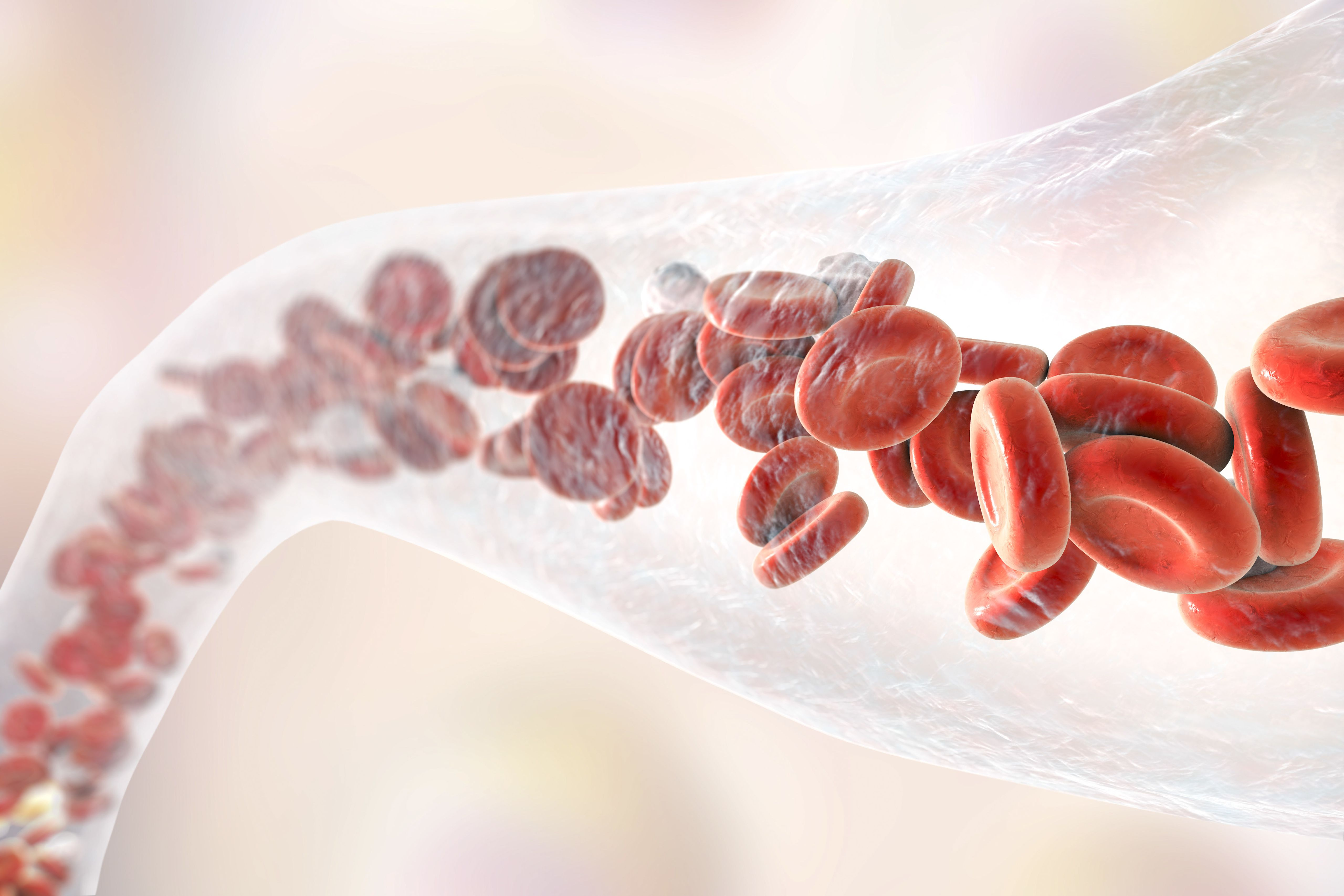 Why Doctors Use Blood Thinners For Stroke Prevention