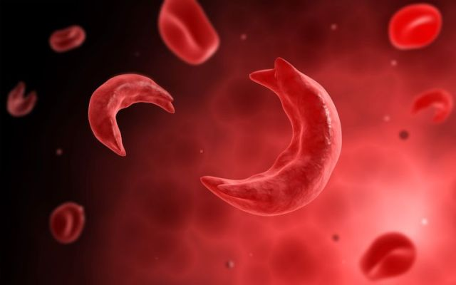 Image result for sickle cell anemia
