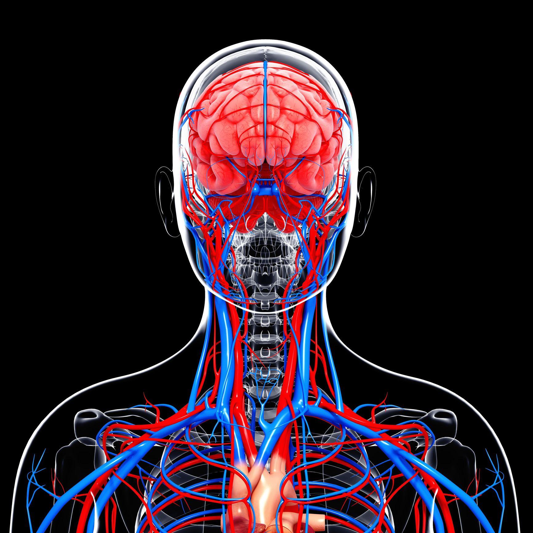 Internal Carotid Artery Stenosis