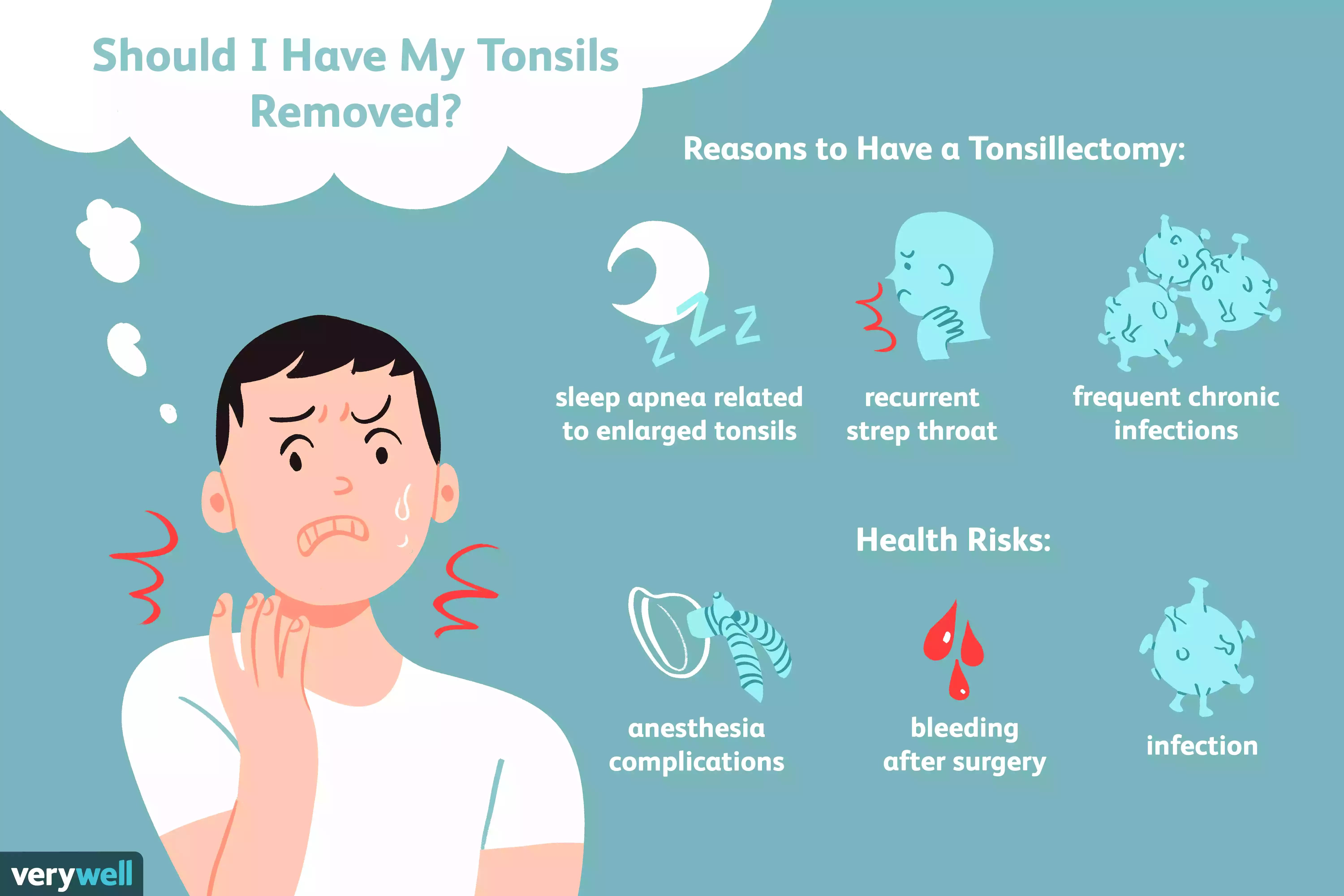 should i have my tonsils removed