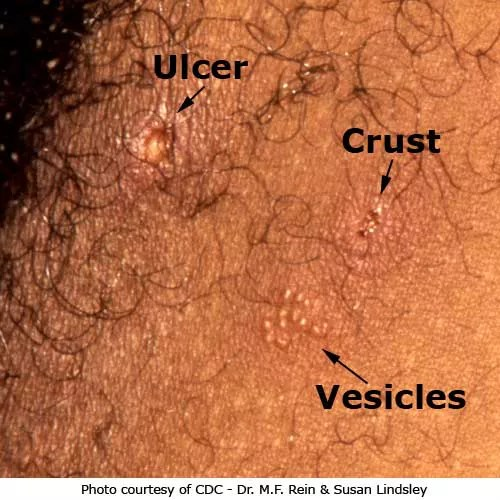Ulcer and herpes vesicles