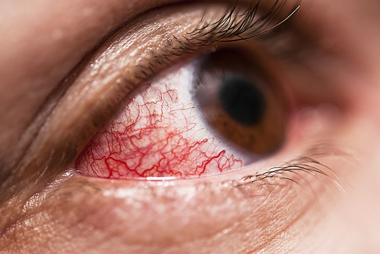 Image result for Eye Inflammation