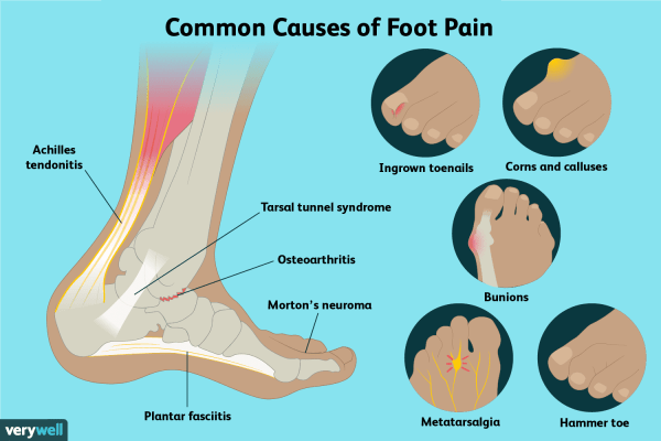 Foot Pain: Causes, Treatment, and When to See a Doctor