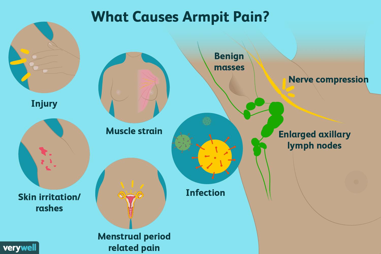 Left Nodes Underarm Arm Lymph