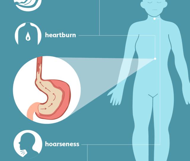 Symptoms Of Gastroesophageal Reflux Disease Gerd