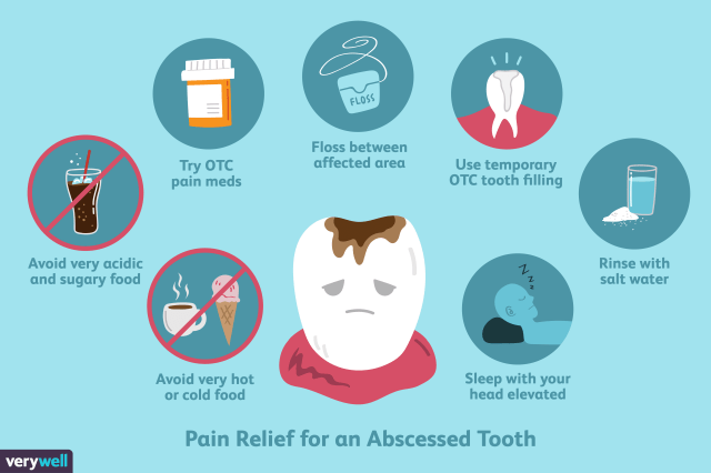 Pain Relief for an Abscessed Tooth
