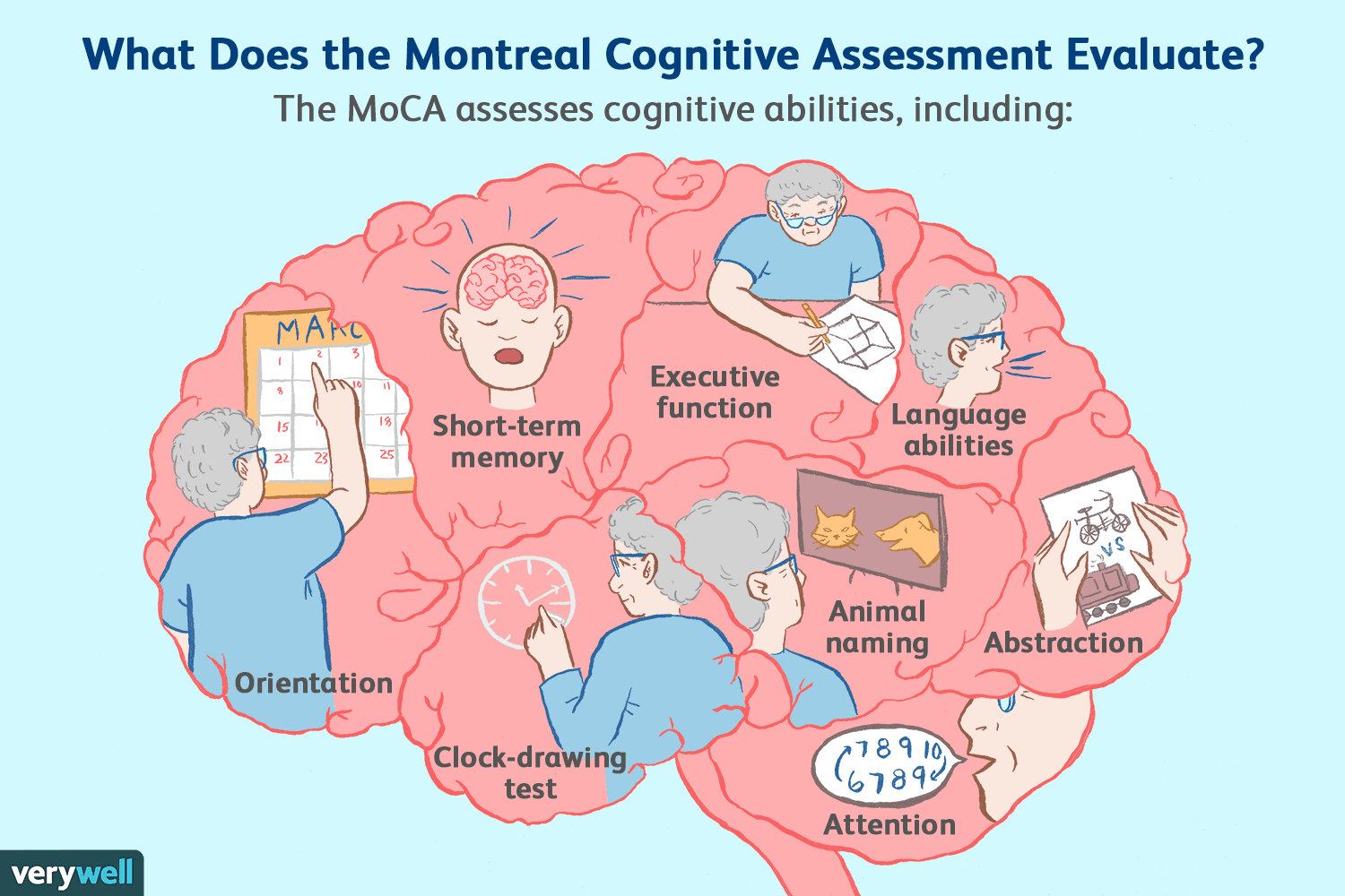 Montreal Cognitive Assessment Moca Test For Dementia
