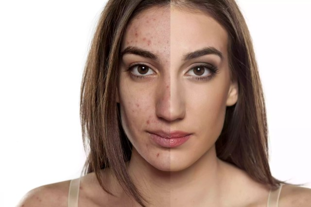 woman with half of her face clean showing acne and make up on the other half