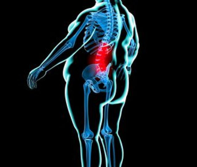 Losing Weight For Back Pain Relief