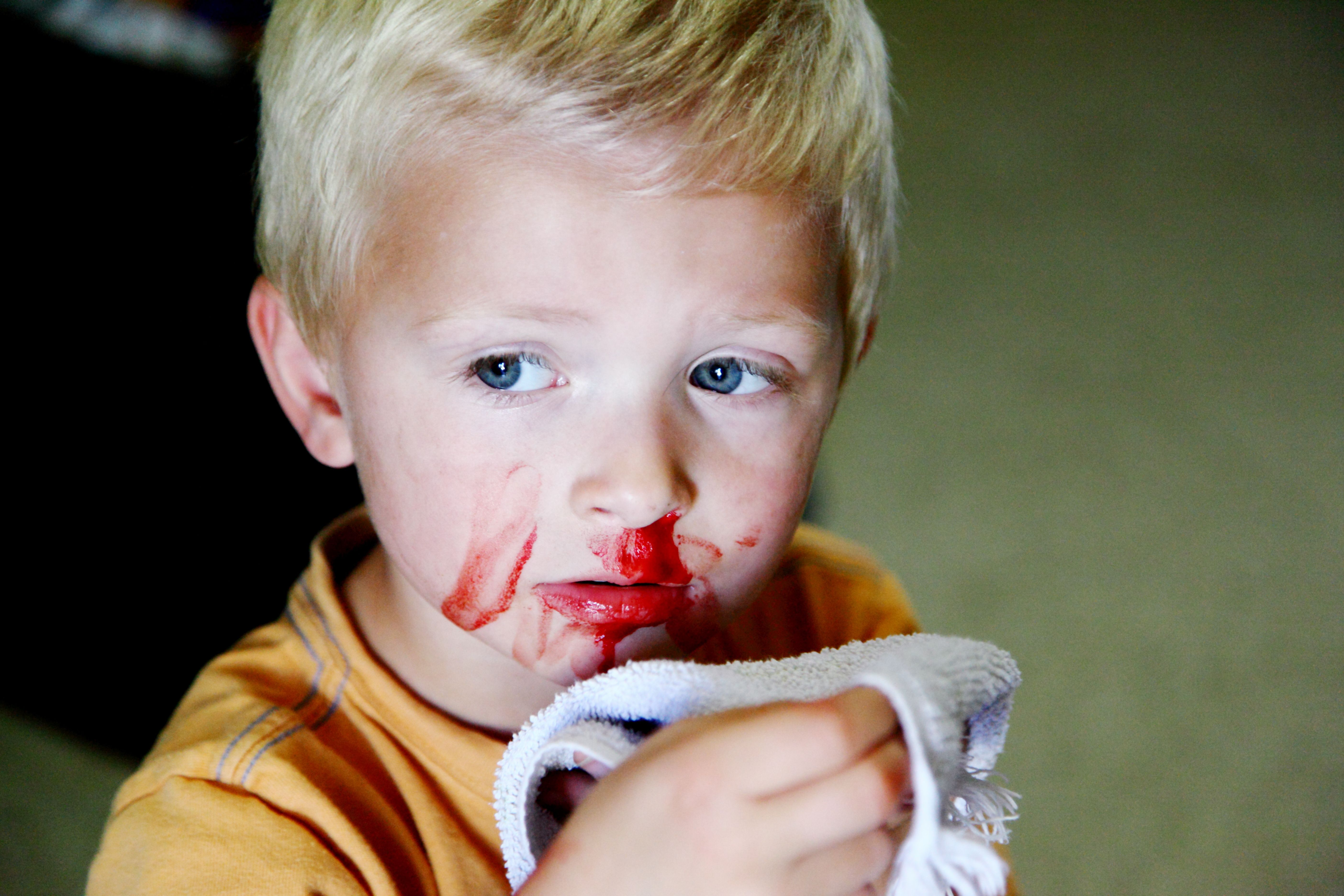 Causes And Treatment Of Nosebleeds