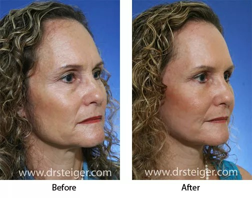 Patient received a 3D face lift, plus upper and lower blepharoplasty (eyelid lift). Face lift and eyelid surgeries were performed by Jacob Steiger, MD, of Delray Beach, FL.