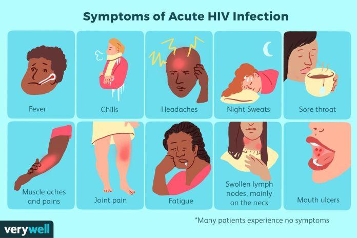 HIV AIDS VACCINE