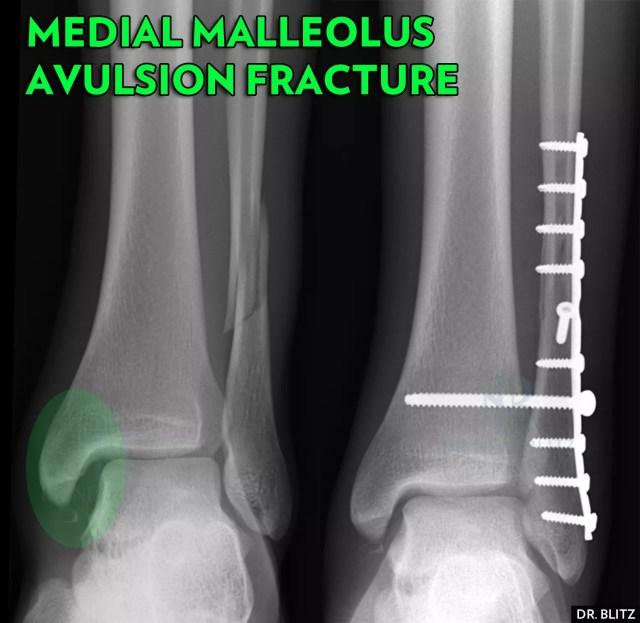 Ankle-Fracture-NYC-Medial-Malleolus-Avulsion-1.jpg