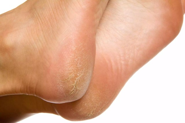 Dry and cracked soles of feet on white background