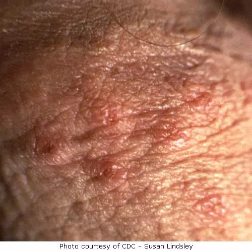 Crusting Lesions on Penis