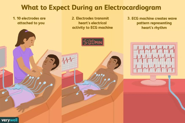 what to expect during an electrocardiogram