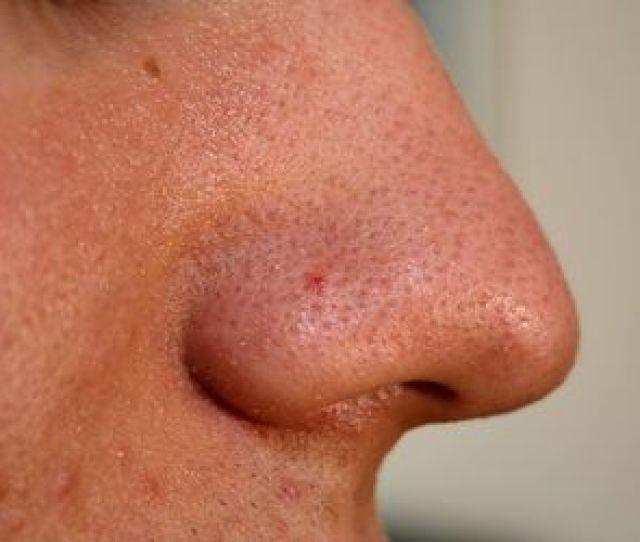 Acne Blemishes That Arent Pimples