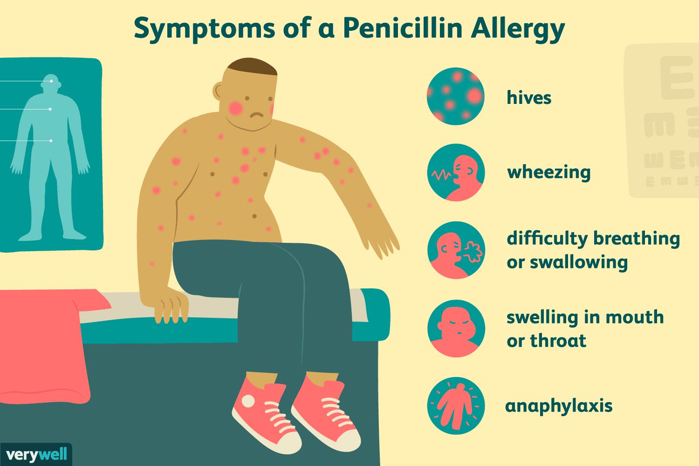 Allergy Symptoms