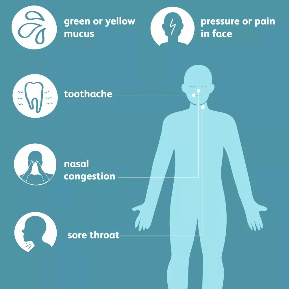 acute sinusitis symptoms