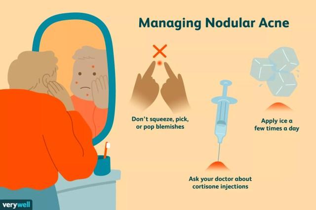 Managing nodular acne