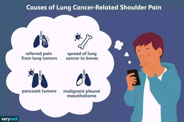 lung cancer-related shoulder pain