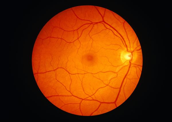 The Anatomy of the Retina