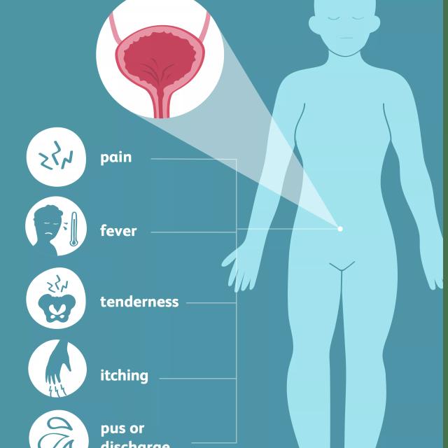 Fistula common symptoms