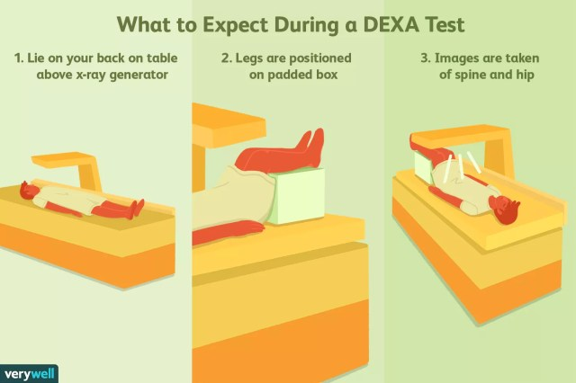 What to expect during a DEXA test