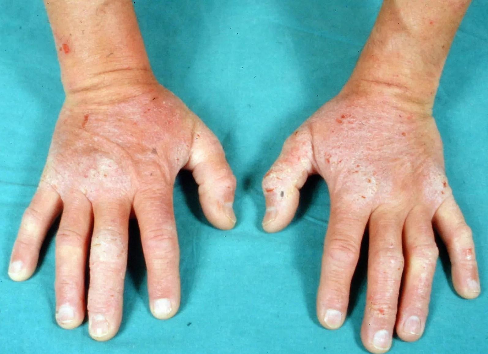 dermatitis herpetiformis on hands