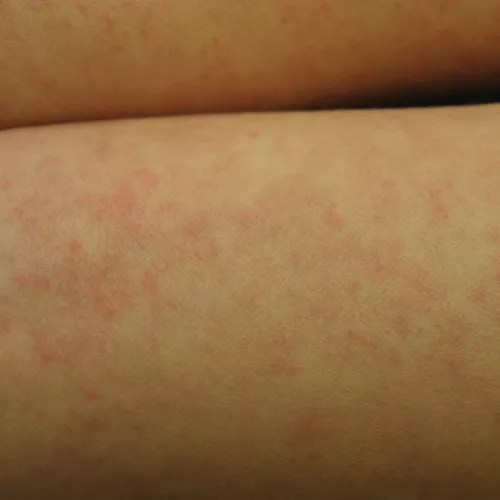 Hives Caused by Infection