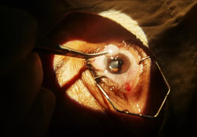 Close up of cataract surgery. A surgeon ready to insert the intraocular lens implant
