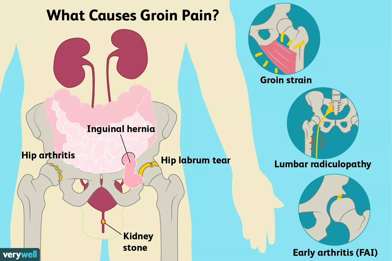 groin pain causes