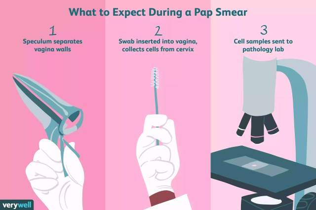What to expect during a pap smear
