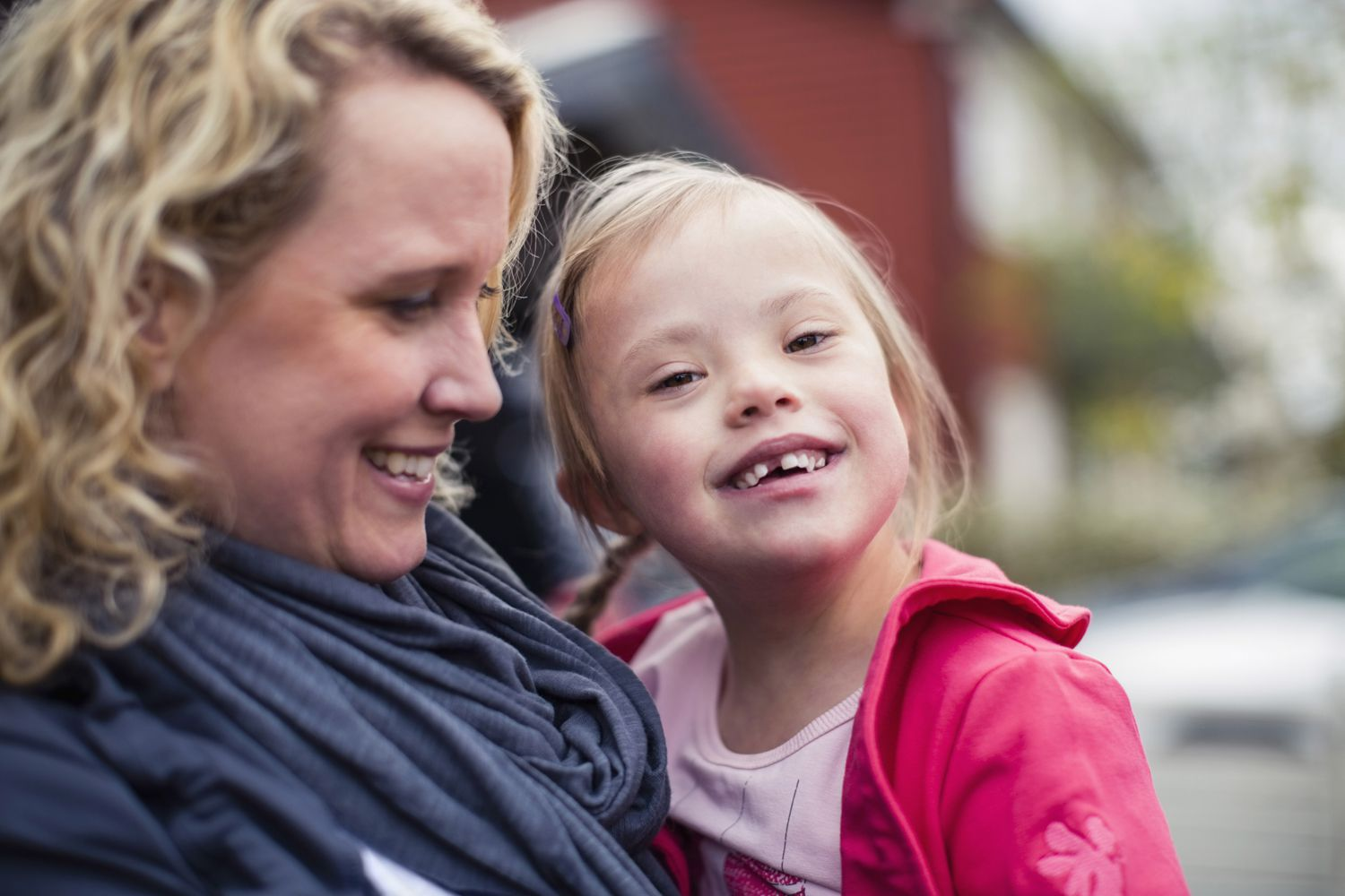 Down Syndrome Overview And More