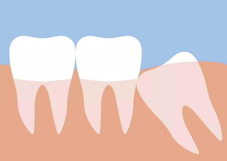 Wisdom tooth illustration