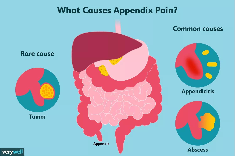 appendix pain causes