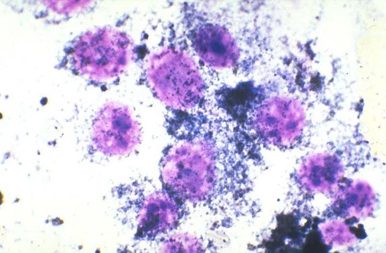 Neoplasia Cytology Veterinary