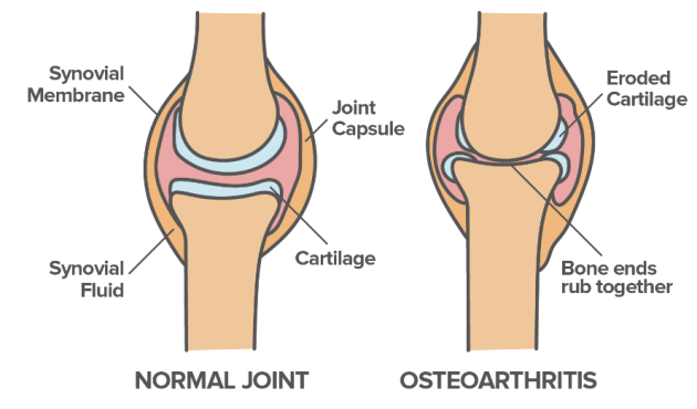 How a Normal Joint and Osteoarthritis Look Like