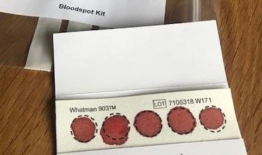 födoämnesintoleranstest IgG-test