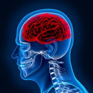 brain injury attorney los angeles