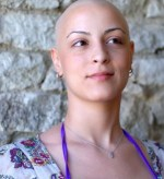 A bald female cancer survivor smiles while thinking