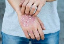 Aceite de sésamo para la Psoriasis