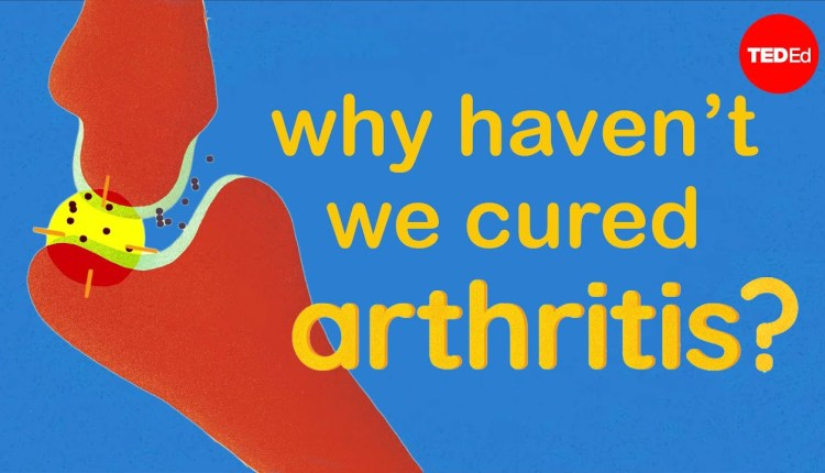 Everything You Need To Know About Arthritis