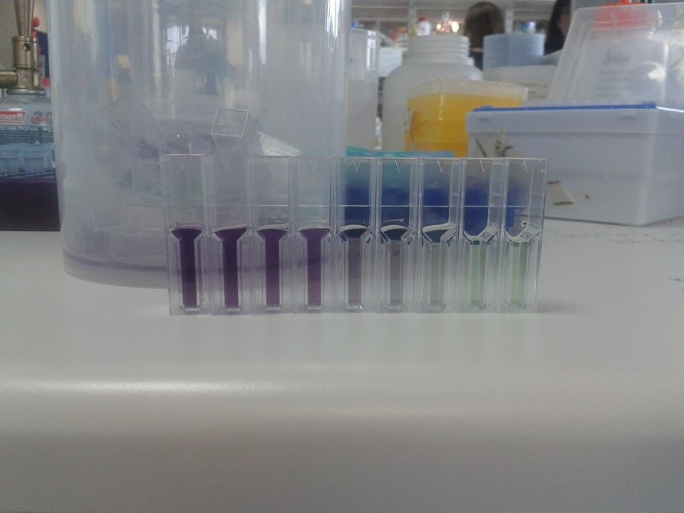 Pretty colours (otherwise known as a BCA assay!)