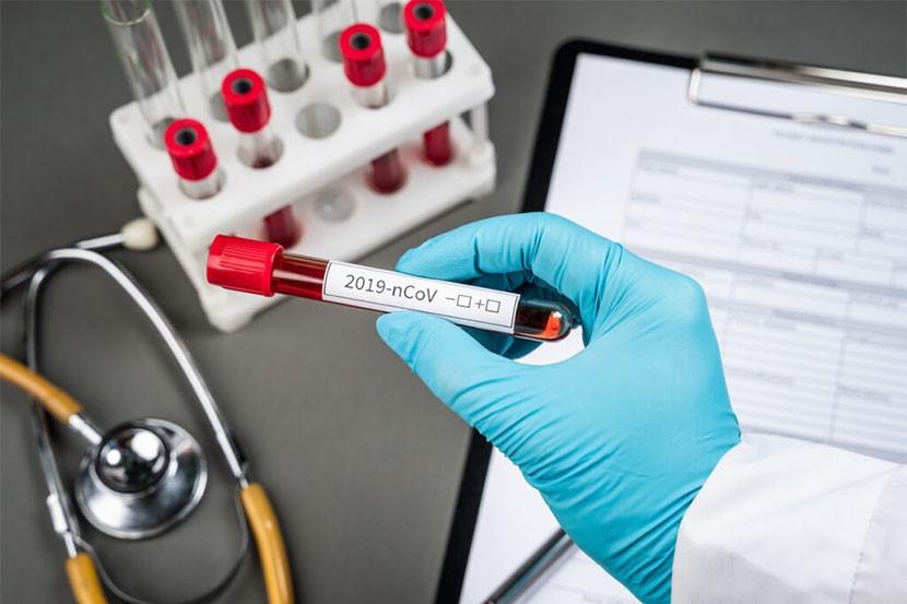 Es triplicaran les proves PCR