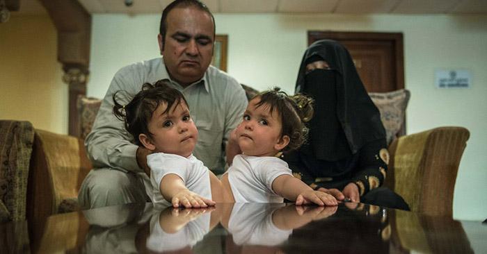 Pakistan-Cojoined-Twins_1