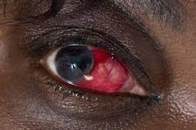 oeil rouge 1