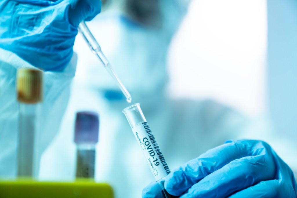 Information sur des tests de dépistage du covid19