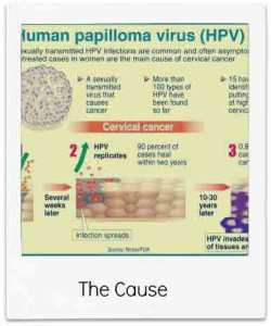 HPV Cervical Cancer: Causes and Prevention Tips