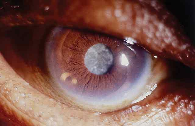 Cataract, lasik, extracapsular cataract extraction, lasik complications